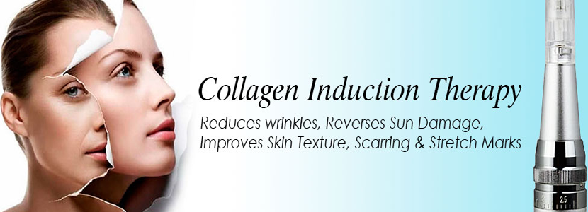 Enhanced Collagen Induction in Lafayette, CO | Aesthetic